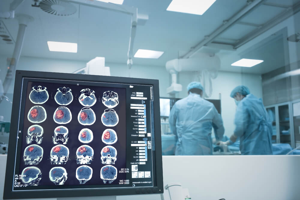 Surgery for stroke